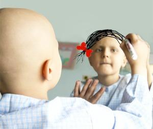 Leucemia e tumores do sistema nervoso são as doenças mais comuns em crianças(Fotografia do blog: http://umavida-as.blogspot.pt)